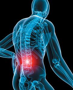 El 80% de las personas tendrá dolor de espalda.